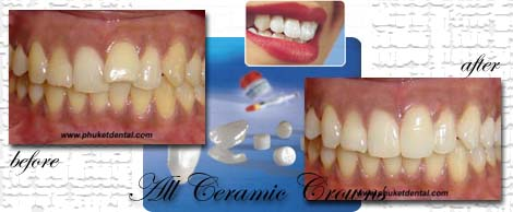 all ceramic crown