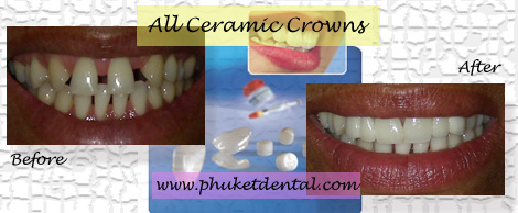 All Ceramic crowns/Phuket Dental Clinic