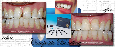 Composite Bonding/Phuket Dental Clinic