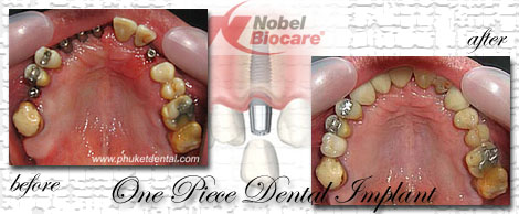 Dental Implants by Phuket Dentist at Phuket Dental Clinic in Phuket,Thailand