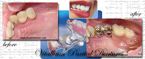 Vitallium Partial Dentures by Phuket Dentist at Phuket Dental Clinic in Phuket,Thailand