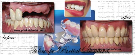 Vitallium Partial Dentures with telescope crown attachment by Phuket Dentist at Phuket Dental Clinic in Phuket,Thailand