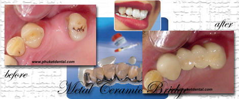 Ceramic/Titanium crowns&bridges by Phuket Dentist at Phuket Dental Clinic in Phuket,Thailand