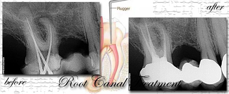 Root Canal Treatment at Phuket Dental Clinic
