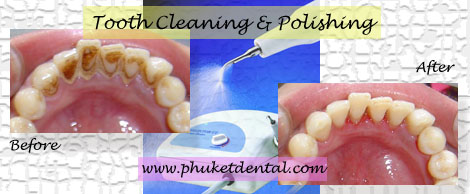 Tooth Cleaning&Air Flow/Polishing at Phuket Dental Clinic,Thailand