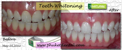 Tooth Whitening:nonLASER,Zoom,Phuket Dental Clinic