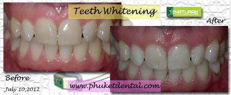 Tooth Whitening:non-LASER,LED,Natural Plus at Phuket Dental Clinic,Thailand