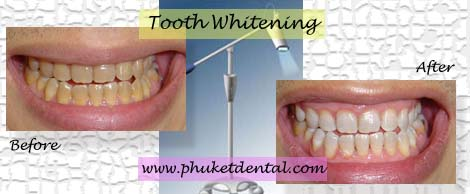 Tetracycline tooth whitening