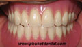 Complete Denture/Full Denture at Phuket Dental Clinic,Thailand