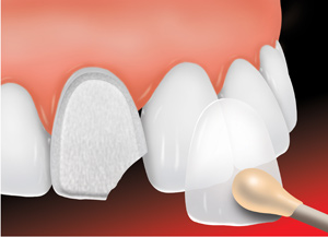 dental veneers:Phuket dentist