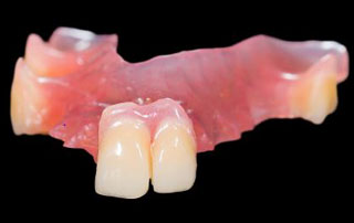 Complete/Partial Dentures